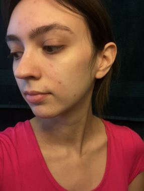 blemish-makeup-before-side-view