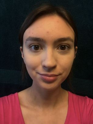 blemish-makeup-conceal-no-blend
