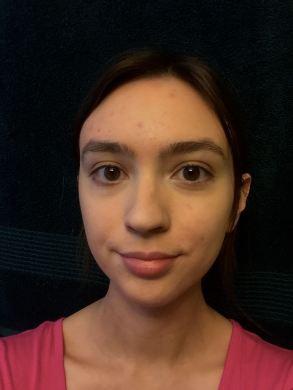 blemish-makeup-primer